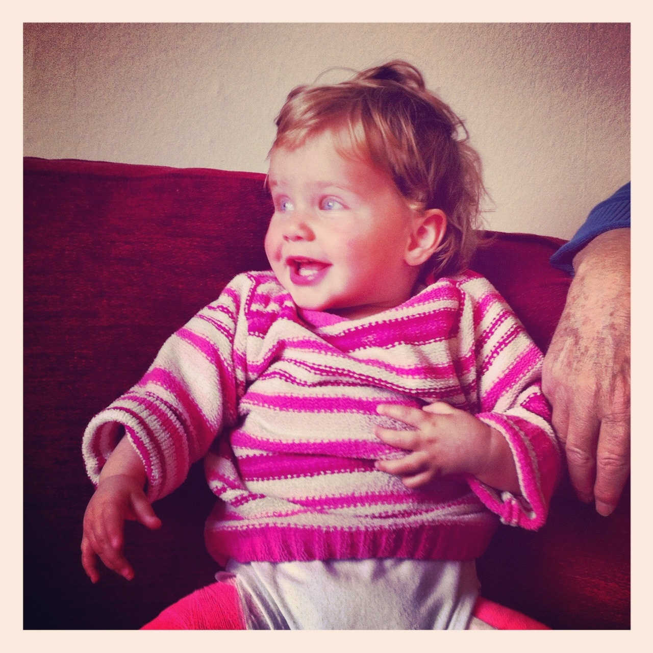 Developmental Dysplasia Of The Hip How To Care For A Child In Spica Cast